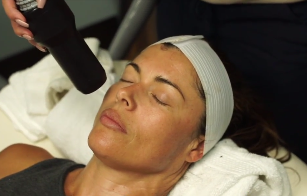US Cryotherapy Facial Rejuvenation
