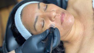 Hydro Dermabrasion Facial at US Cryotherapy